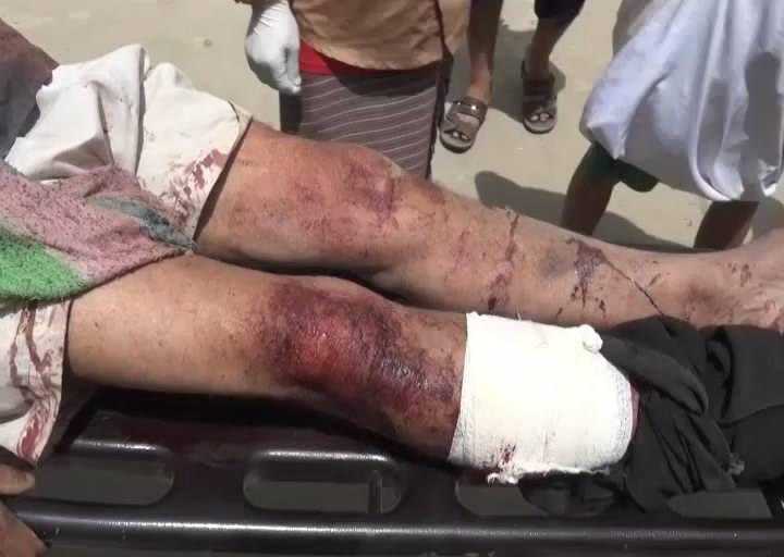 مجزرة سوق الجمعة بحيدان صعدة 21-9-2015