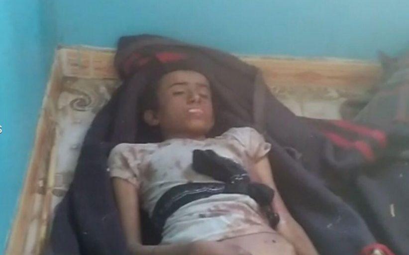 شاهد فيديو لجريمة العدوان الغاشم في منطقة الغور بغمر صعدة ( أسماء)