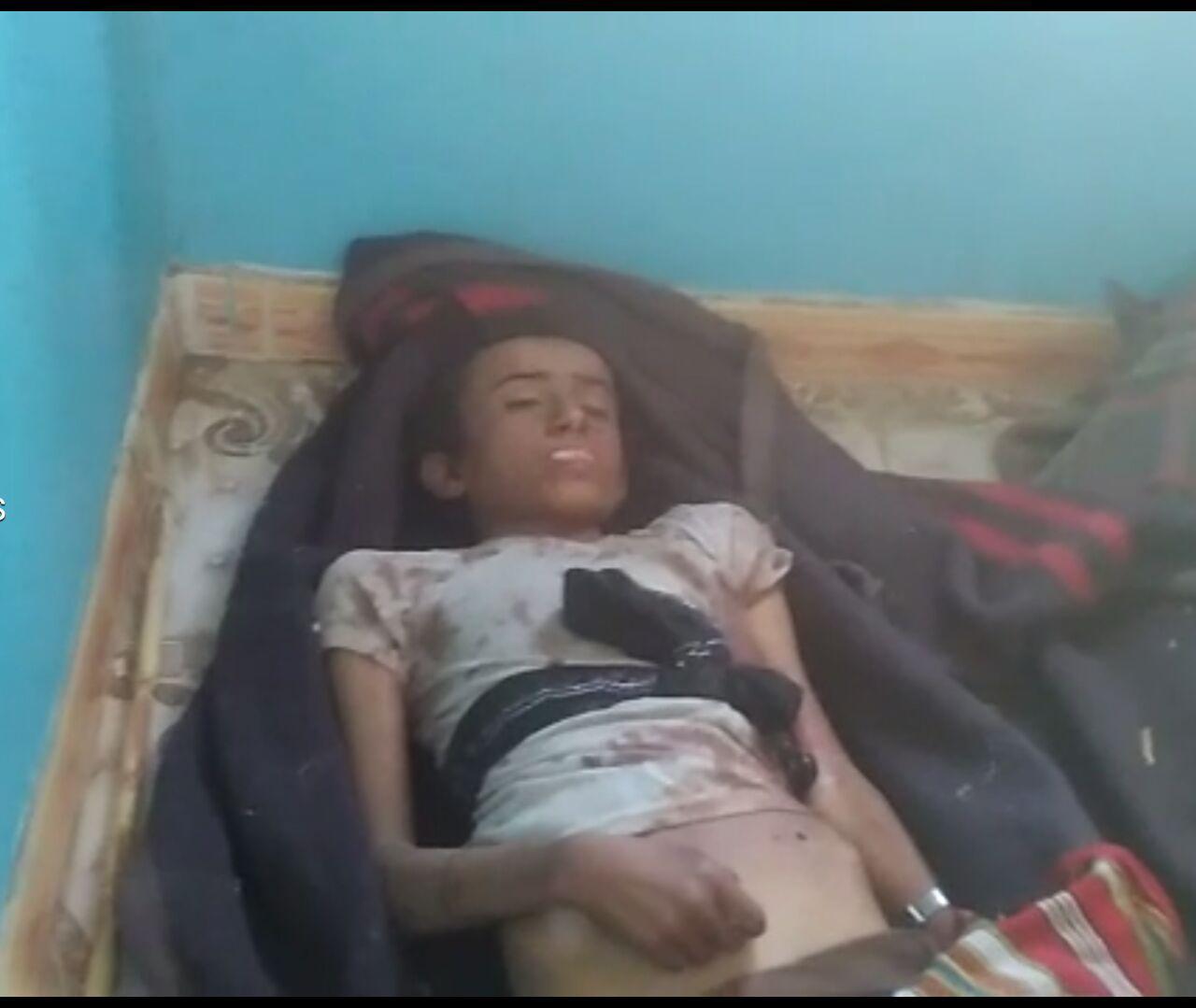 استشهاد وإصابة 3 مواطنين من أبناء مديريتي منبه وغمر بمحافظة صعدة