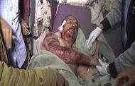 رصد جرائم العدوان الأمريكي السعودي والمنافقين ليوم السبت 1 جمادى الثاني 1439هـ الموافق 17_2_2018م