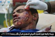إصابة مواطنين اثنين بغارة لطيران العدوان على آل عقاب بصعدة (صور)