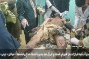 رصد جرائم العدوان الأمريكي السعودي والمنافقين ليوم الخميس 6 جمادى الثانية 1439هـ الموافق 22_2_2018م