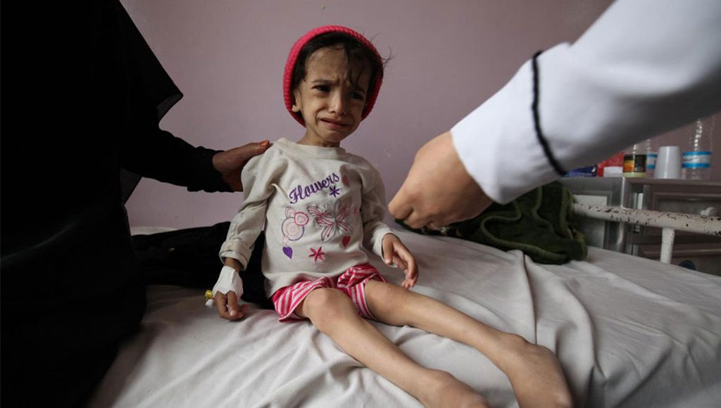 UN: A Yemeni Child Dies Every 10 Minutes Due To Starvation And Preventable Diseases In Yemen